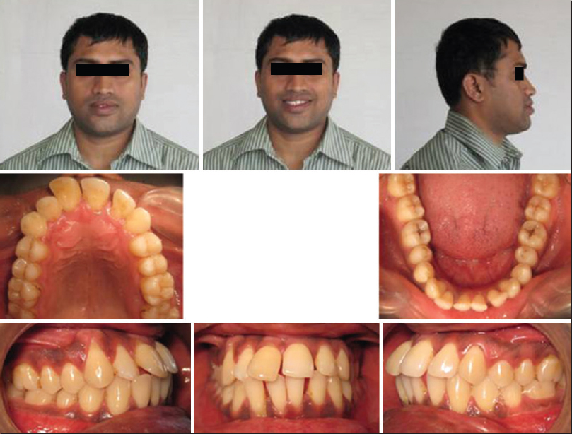 Figure 1: Pretreatment extraoral and intraoral photographs