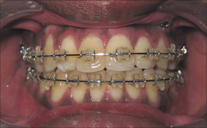 Figure 2: Mid - treatment intraoral photograph
