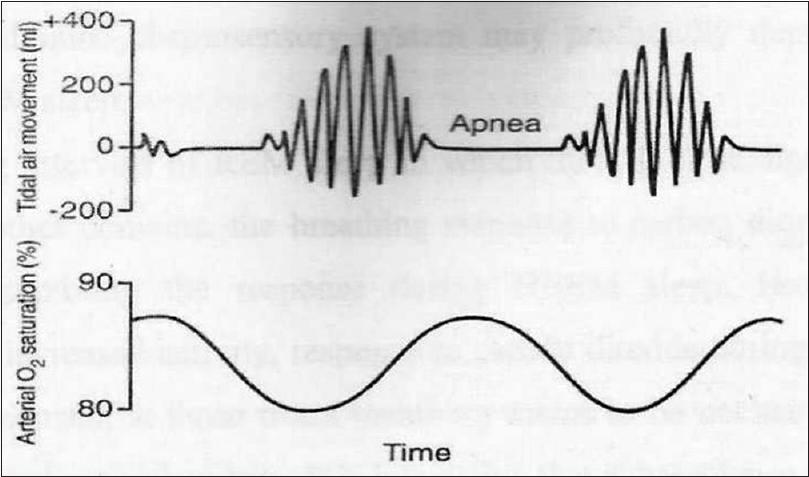 Obstructive sleep apnea in orthodontics: An overview