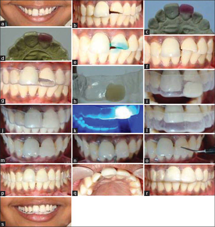 Complementary use of essix retainer Kangane SK, Joshi YS
