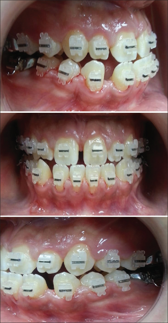 Camouflage treatment of Angle's Class III malocclusion in a