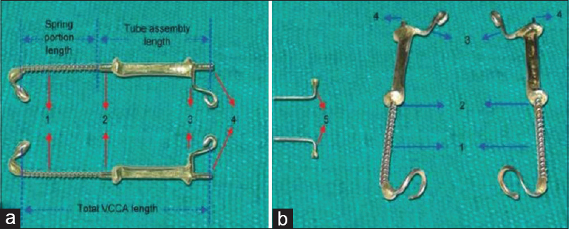 Figure 12: Vibhute Class II Correction Appliance. Mandibular push component inserted through the maxillary tube assembly: (a) Length of maxillary tube component outside soldered part may be kept as per patient need and comfort, (b) length of maxillary tube component may be reduced as shown by arrows 2 and 4
