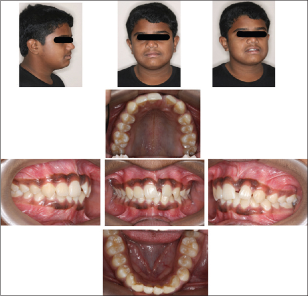 Figure 1: Pretreatment intraoral and extraoral photographs