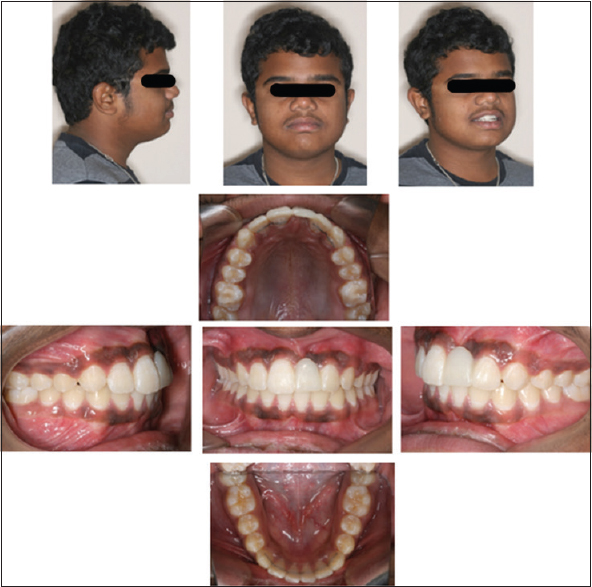 Figure 4: Posttreatment extraoral and intraoral photographs with acrylic temporary pontic