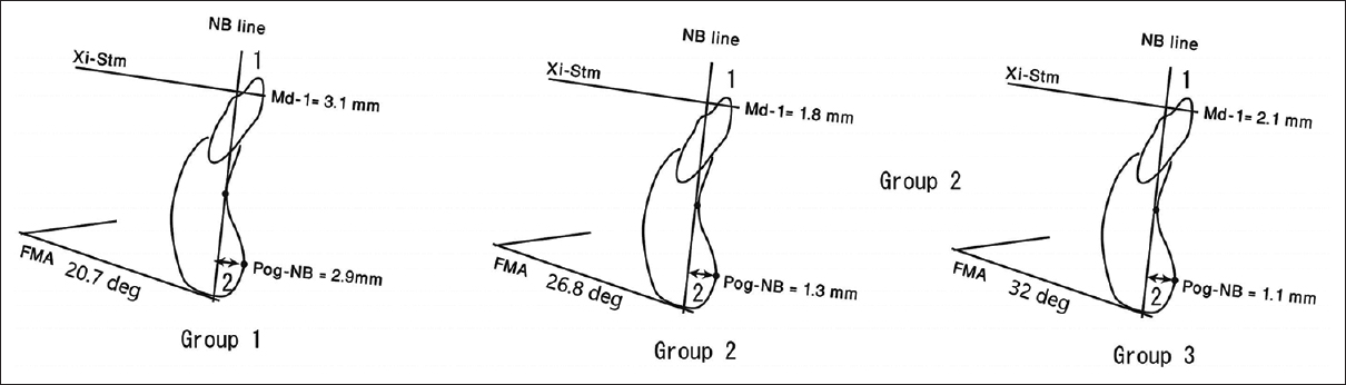 Figure 4: Average values of Frankfort mandibular plane angle, chin prominence (Pog-NB), and the mandibular incisor to the occlusal plane (Md-1) for the three groups. (1) L1/NB (deg): The angle formed between the long axis of the lower central incisor and NB line. (2) L1-NB (mm): the linear perpendicular distance from the most anterior point of the crown of the mandibular incisor NB line