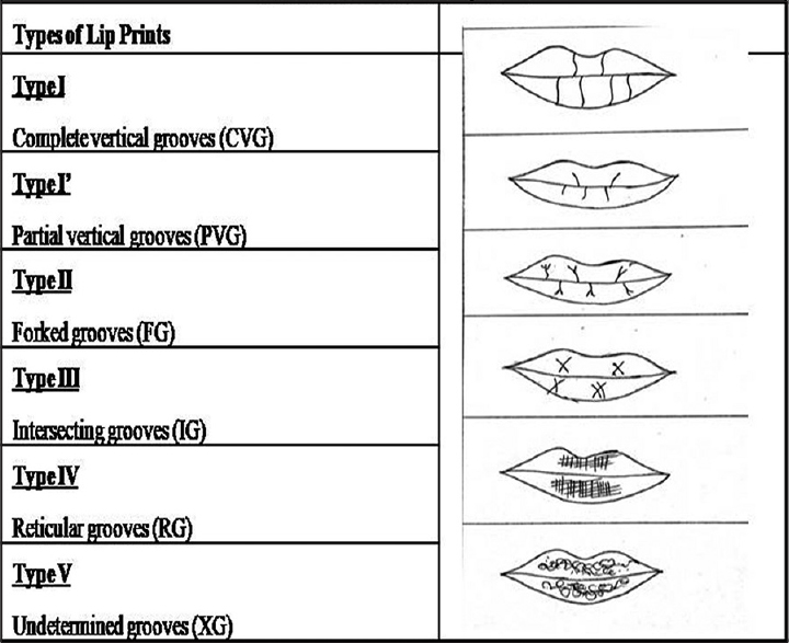 Figure 3: Different types of lip print pattern observed in the study