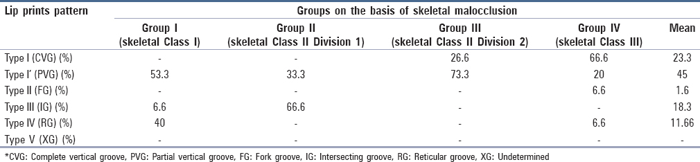 Table 4: Prevalence of type of lip print pattern in different malocclusion groups (n=15)