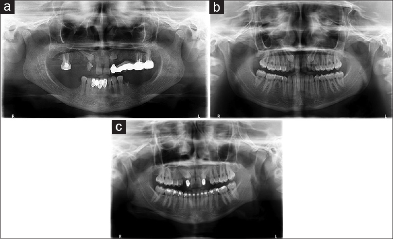 Figure 4: (a) Type 2 (Subtype a): Bilateral mesio-angular positioned maxillary canine in relation to the distal side of the apical third root portion of central incisor either in palatal or labial position. (b) Type 2 (Subtype b): Bilateral mesio-angular positioned maxillary canine in relation to the distal side of the middle third root portion of central incisor either in palatal or labial position. (c) Type 2 (Subtype c): Bilateral mesio-angular positioned maxillary canine in relation to the distal side of the cervical third root portion of central incisor either in palatal or labial position