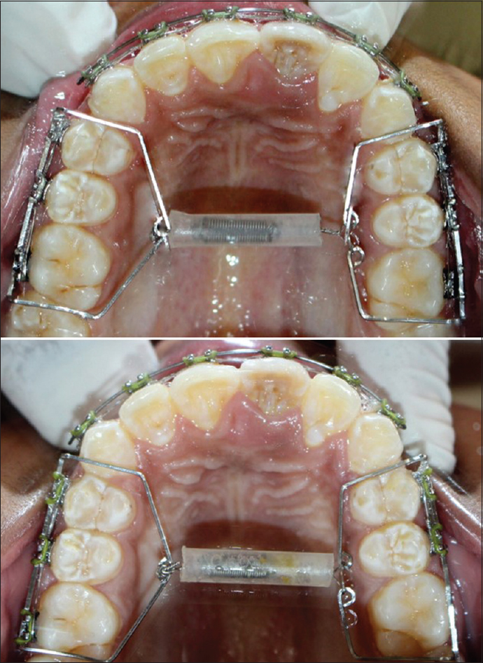 Figure 5: Occlusal view pre- and post-treatment